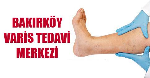 bakırköy varis tedavi merkezi